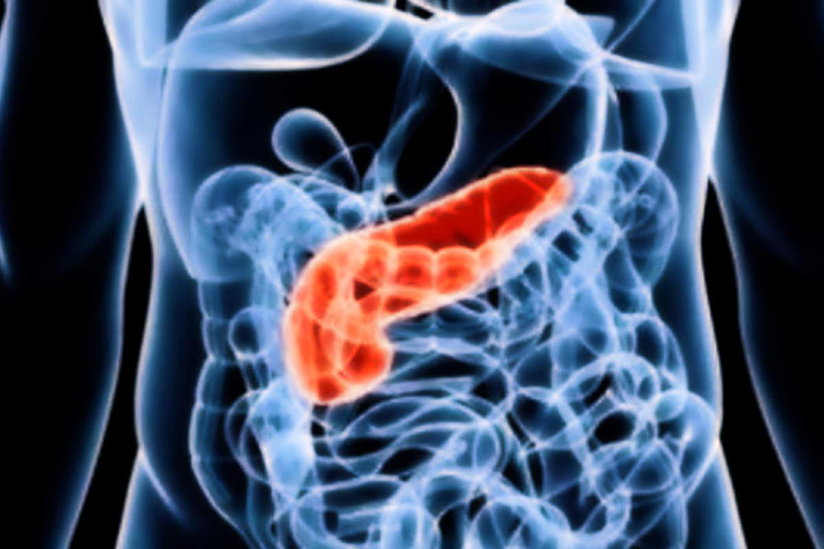 A Roma il primo farmaco contro il tumore al pancreas causato da un gene che ha anche Angelina Jolie